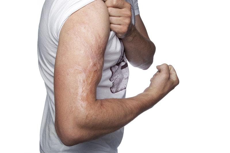 burn scar occupational therapy